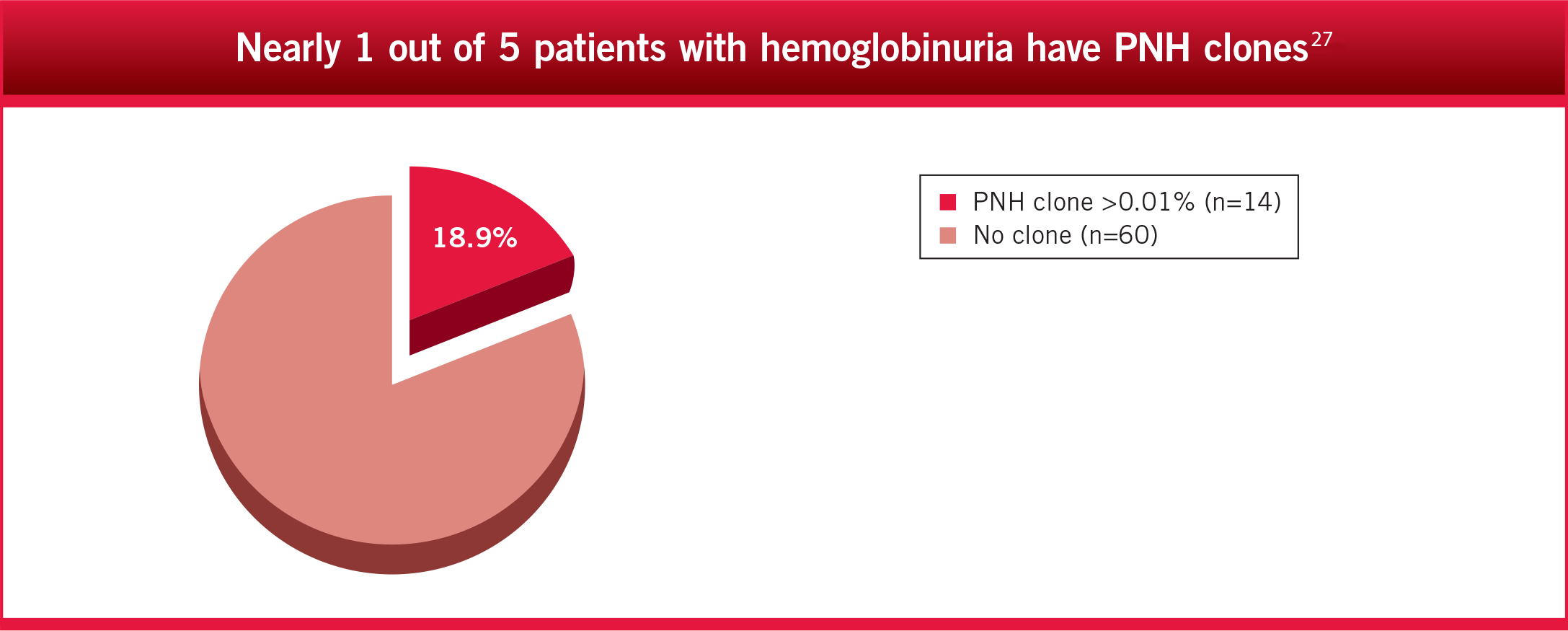 Nearly 1 out of 5 patients with hemoglobinuria have PNH clones3