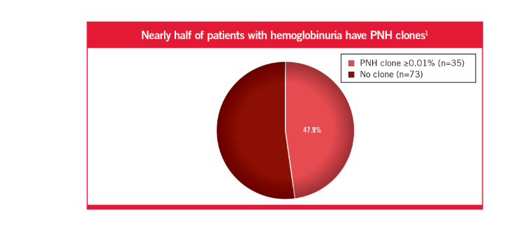 Nearly 1 out of 5 patients with hemoglobinuria have PNH clones1