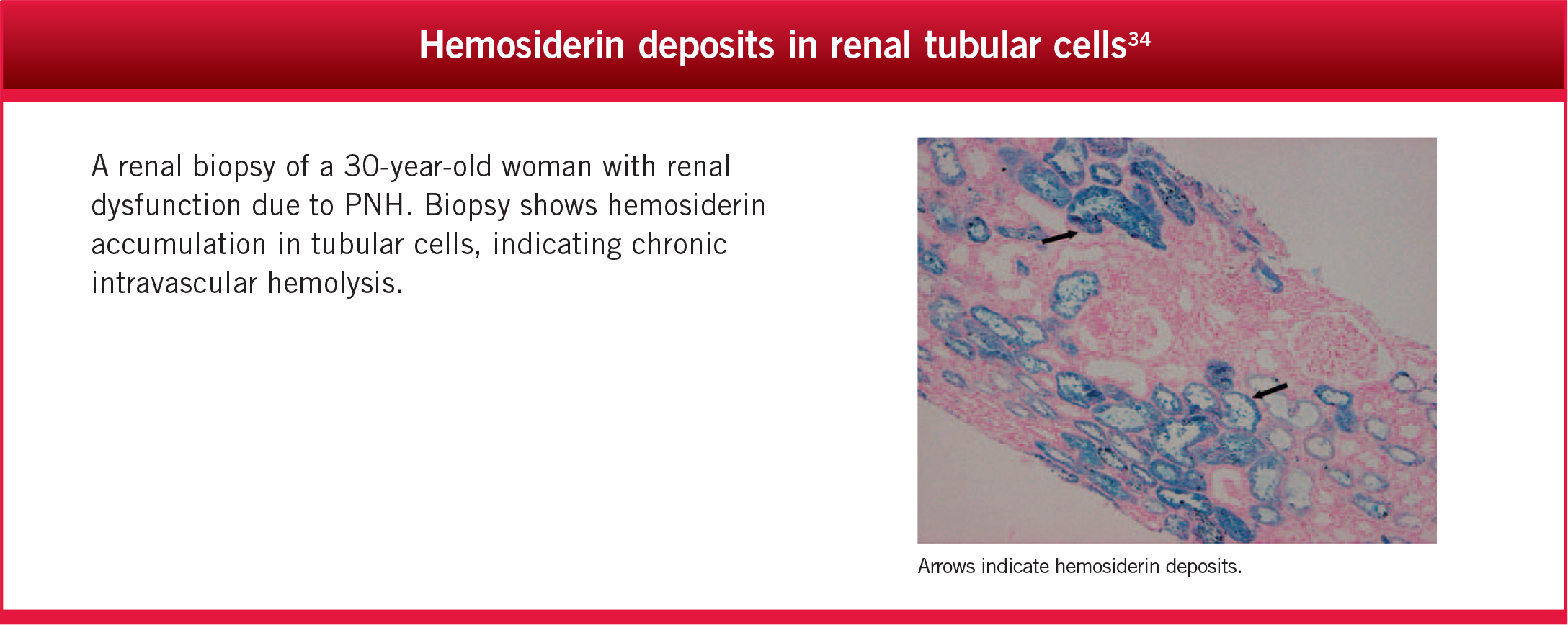Hemosiderin deposits in renal tubular cells